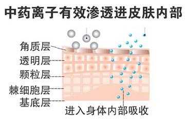 药离子渗透技术